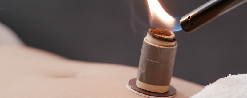 QiHai Moxibustion Moxa
